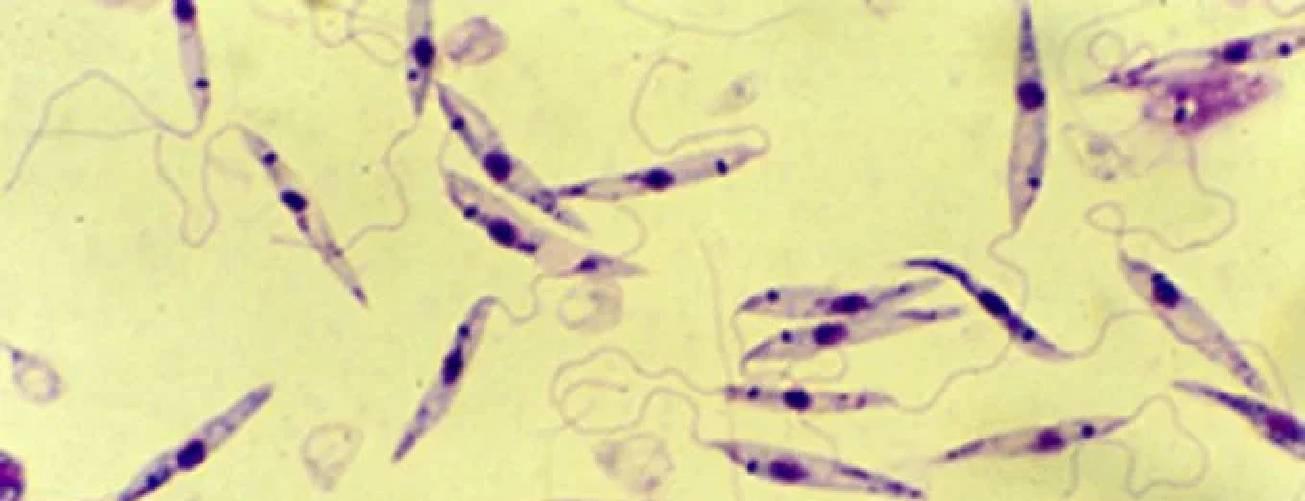 Doença parecida com leishmaniose, mas mais grave, é descoberta no Brasil